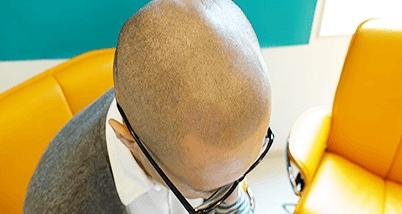 頭皮のアートメイク2