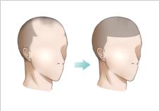 頭皮のアートメイク3